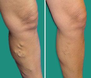 venicile varicoase asupra tratamentului cu picioarele efective cele mai bune instrumente din revizuirile picioarelor varicose