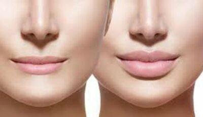 Mărirea buzelor cu acid hialuronic – o necesitate sau un moft?