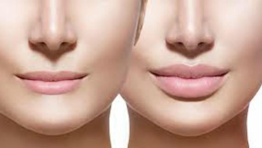Foto: Mărirea buzelor cu acid hialuronic – o necesitate sau un moft?