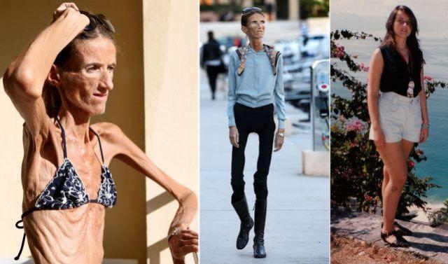 Incredibil cum arată cea mai slabă femeie din lume!