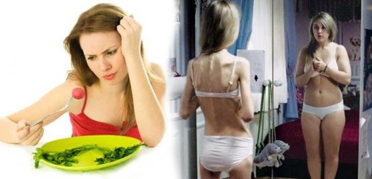 Anorexia poate ucide! (Video)
