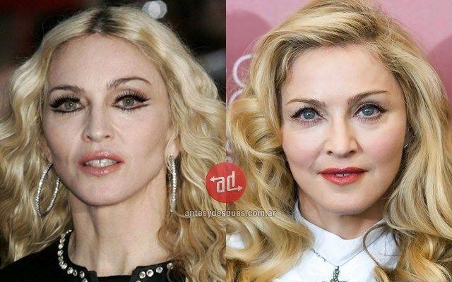 Desfigurată De Botox Şi A 238 Ngrozit Fanii La Ultimul Concert