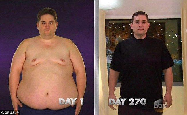 grade obezitate