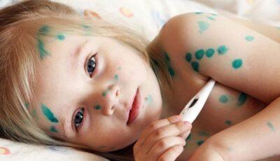 Sfaturi utile pentru îngrijirea copilului bolnav de varicelă