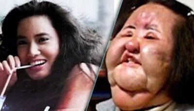 Oameni distruși de operații estetice!