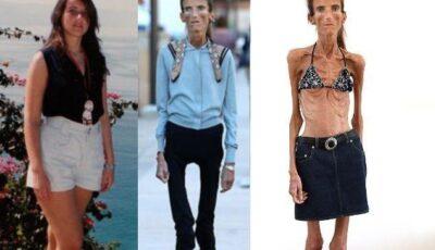 Simptomele anorexiei