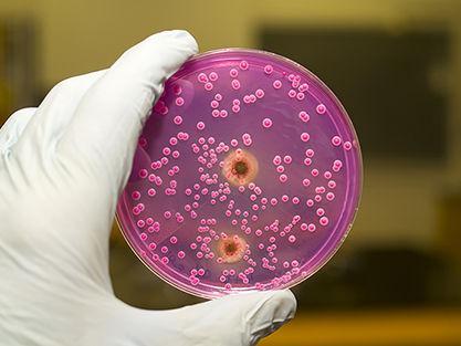 cancer bucal signos scaun de parazit giardia