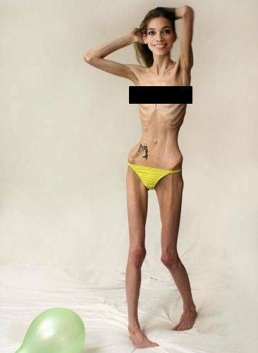 anorexique-L-1