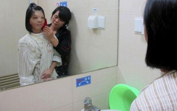 Foto: Medicii i-au crescut o nouă față pe unul din sâni!
