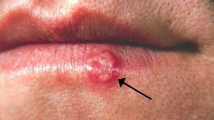 Foto: Ce boală gravă poate provoca un banal herpes