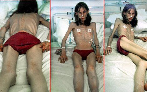Femeia aceasta n-a mâncat mai nimic 20 de ani. Vezi ce a făcut-o să se înfometeze!
