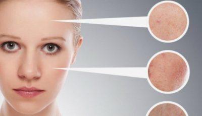 Cum îndepărtezi semnele lăsate de acnee