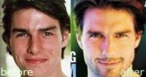 8 bărbați celebri de la Hollywood care au apelat la operații estetice!