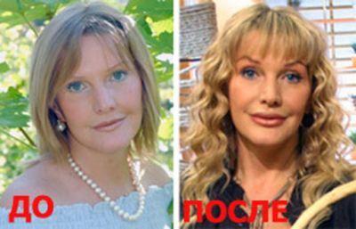 Elena Proklova
