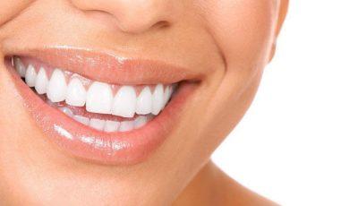 Dinţi albi în doar 4 minute!