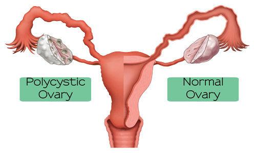 Ovare-polichistice