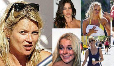 Kate Moss are pielea distrusă de soare
