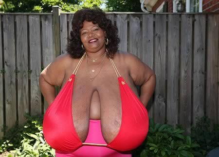 a98056_shape_9-largest-breast