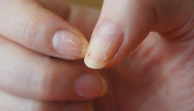 Cum să-ţi repari unghiile deteriorate de prea multă ojă