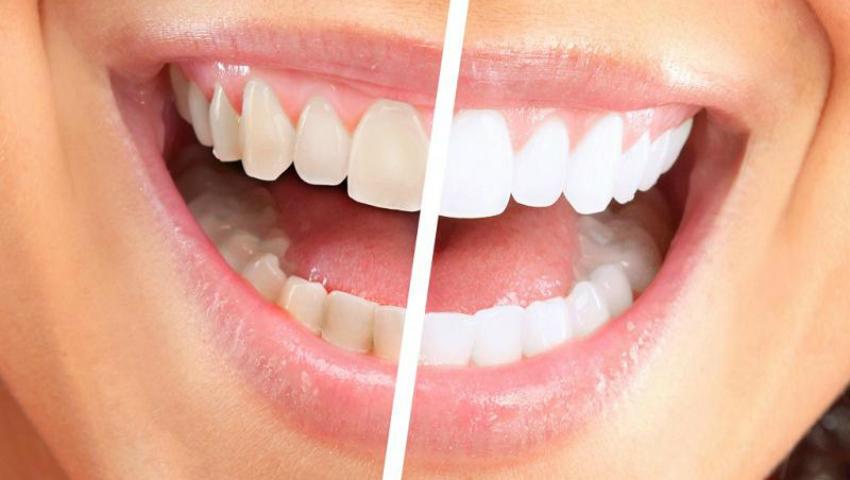 Foto: Albeşte-ţi dinţii cu apă oxigenată! Vezi cât de bine îți va prinde acasă!
