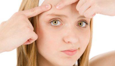 Tratamente naturiste pentru coșurile de sub piele