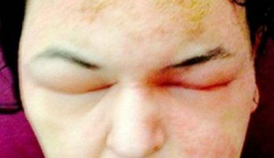 Imagini șocante! A fost desfigurată din cauza unei vopsele de păr
