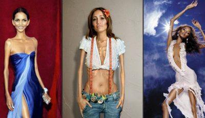 Cum ar arăta vedetele dacă ar suferi de anorexie!