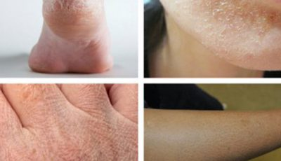 Iată ce boli poate ascunde pielea uscată