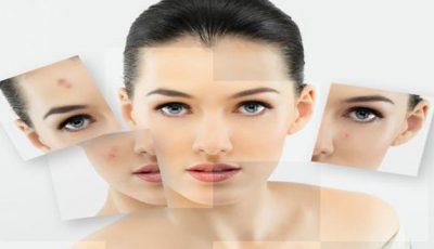 Un nou tratament împotriva acneii, testat cu succes