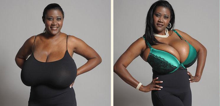 Foto: Boala care îţi creşte sânii