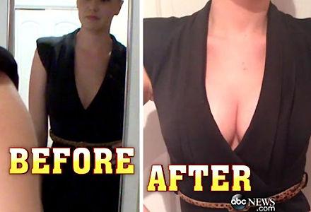 breast_lifting