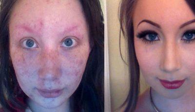 Transformare uluitoare: Era urâtă şi niciun băiat nu se apropia de ea!