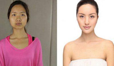 Chinezoaicele îşi fac operaţii estetice pentru a semăna cu europencele