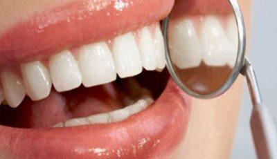 Vezi ce alimente îţi protejează dinţii de carii