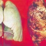 Foto: Cum să-ți cureți natural plămânii în două zile?