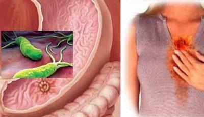 Bacteria care infectează stomacul, duce la gastrită, ulcer şi chiar cancer