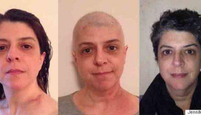 O femeie bolnavă de cancer pulmonar s-a fotografiat zilnic timp de un an
