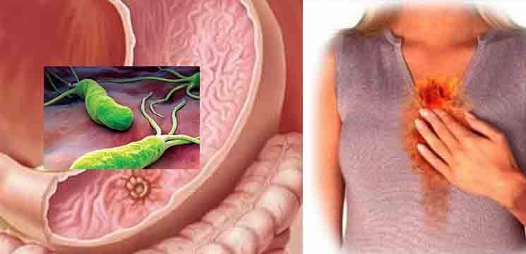 Foto: Bacteria care infectează stomacul, duce la gastrită, ulcer şi chiar cancer