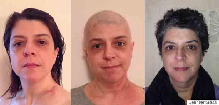 Foto: O femeie bolnavă de cancer pulmonar s-a fotografiat zilnic timp de un an
