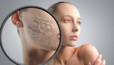 6 trucuri de îngrijire a pielii uscate