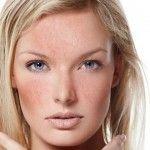 Foto: Cosmetologul Lili Psarudakis:  Cuperoza! Ce este și cum se tratează