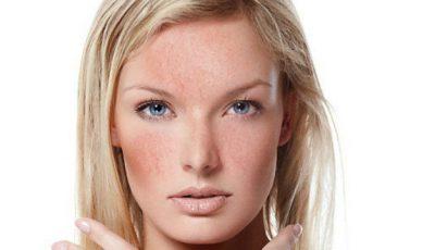 Cosmetologul Lili Psarudakis:  Cuperoza! Ce este și cum se tratează