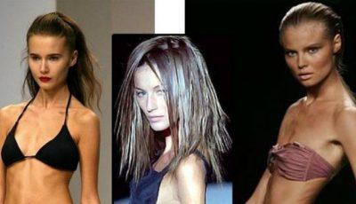 Modele care au murit din cauza anorexiei!