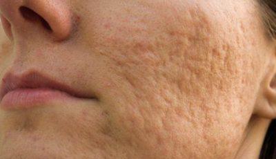 """Remedii naturale care """"șterg"""" semnele lăsate de acnee"""