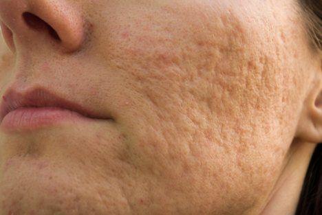 """Foto: Remedii naturale care """"șterg"""" semnele lăsate de acnee"""