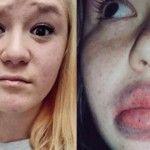 Foto: Îngrozitor! Sute de femei se desfigurează cu un dispozitiv de mărire a buzelor