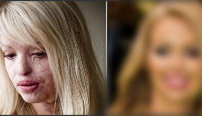 Fostul iubit i-a distrus fața cu acid sulfuric. Cum arată Katie Piper după intervenția chirurgicală