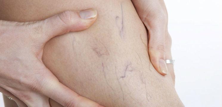 exerciții pentru femeile însărcinate pentru prevenirea varicelor