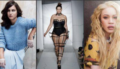 Suferă de strabism sau vitiligo. Modelele care au spart tiparele!