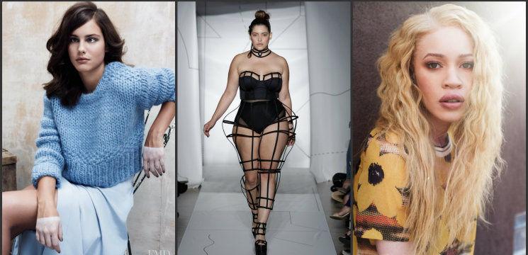 Foto: Suferă de strabism sau vitiligo. Modelele care au spart tiparele!